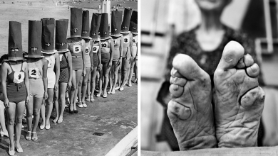 Photo of Women Subjected Themselves For These 20 Weird Things For The Sake Of Beauty In The Past