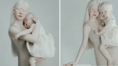 Photo of These Two Albino Sisters Are Remarkably Beautiful